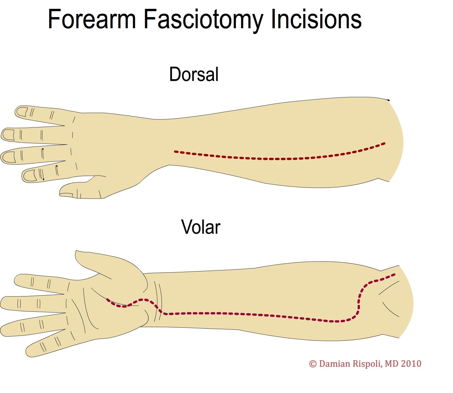 Human Anatomy for the Artist: The Dorsal Forearm, Part 2 ... |Dorsal Arms