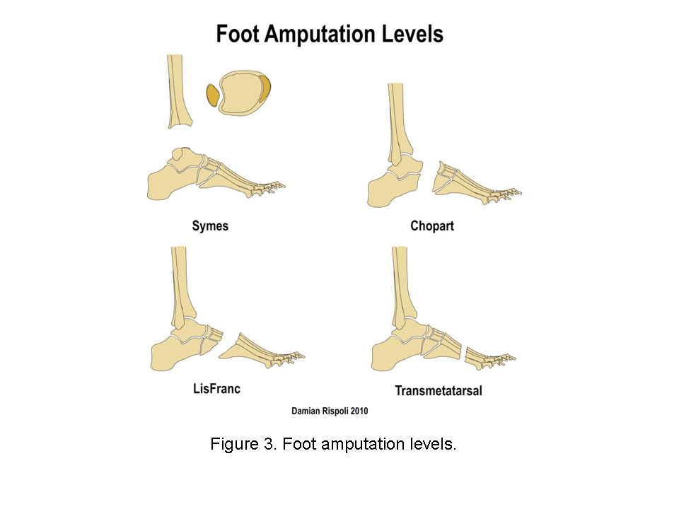 transtibial prothesis Part 1 will focus on correctly identifying and understanding gait and gait deviations that occur in individuals with transtibial amputations decoding and understanding transtibial and transfemoral gait can be affected through prosthetic treatment of of transtibial.