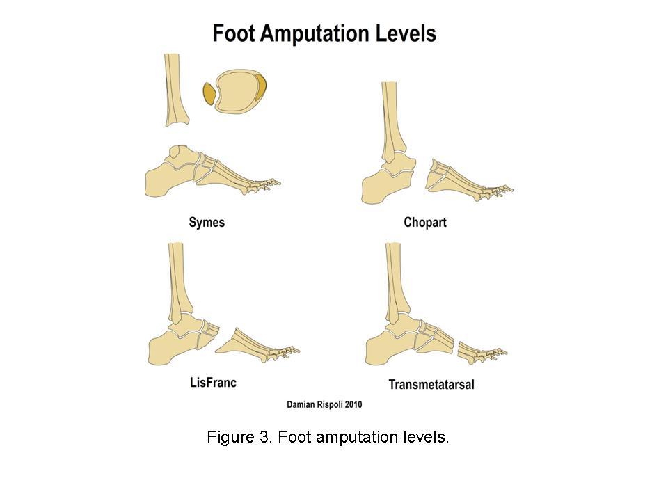 wheeless textbook of orthopaedics